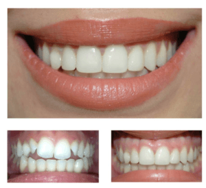 تخفیف کامپوزیت دندان