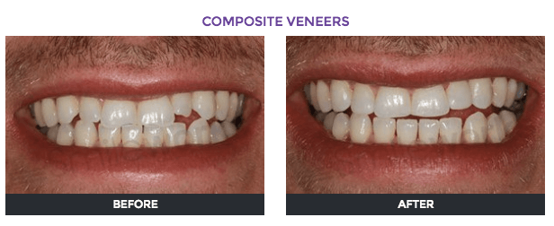 بهترین کامپوزیت دندان در کرج